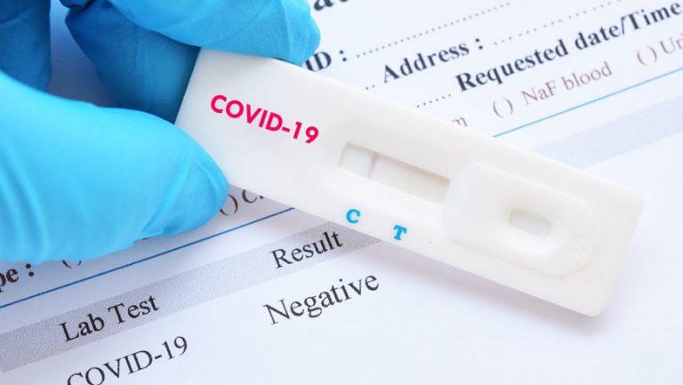 МОЗ: Коли повинні проводити тест на COVID-19
