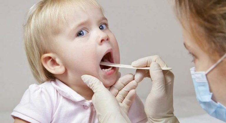 Лікування запального процесу в горлі