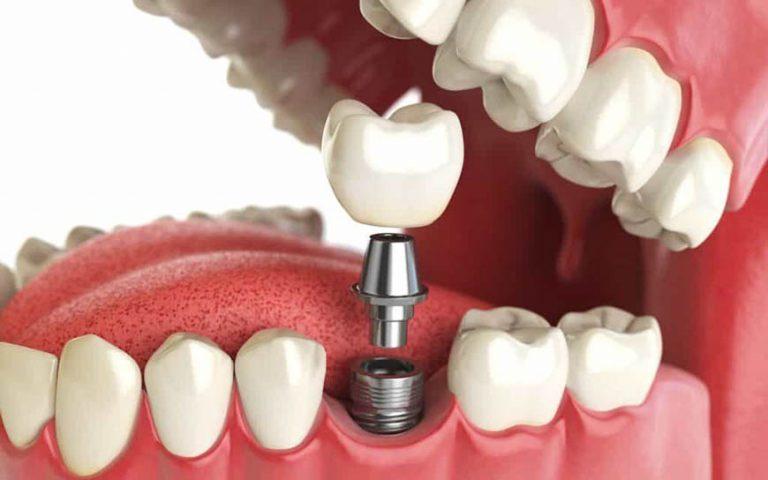 Що таке імплант зуба і як він використовується в стоматології